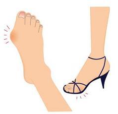 名古屋市熱田区の整体・外反母趾・内反少指・足の痛み
