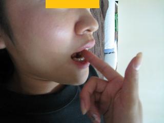 顎関節症の改善なら